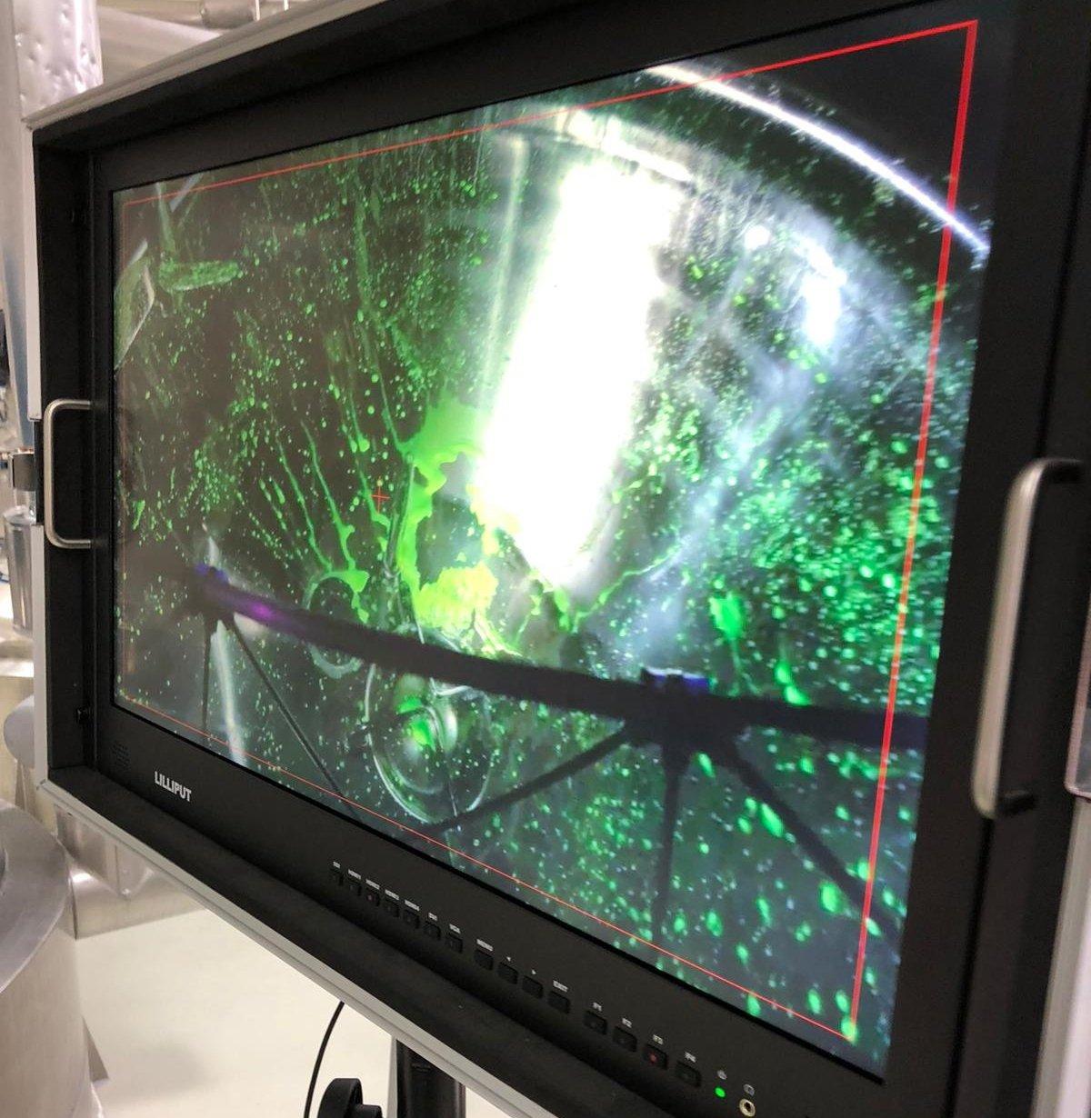 screen-riboflavin-test